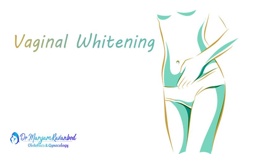 سفید کردن واژن بنر1