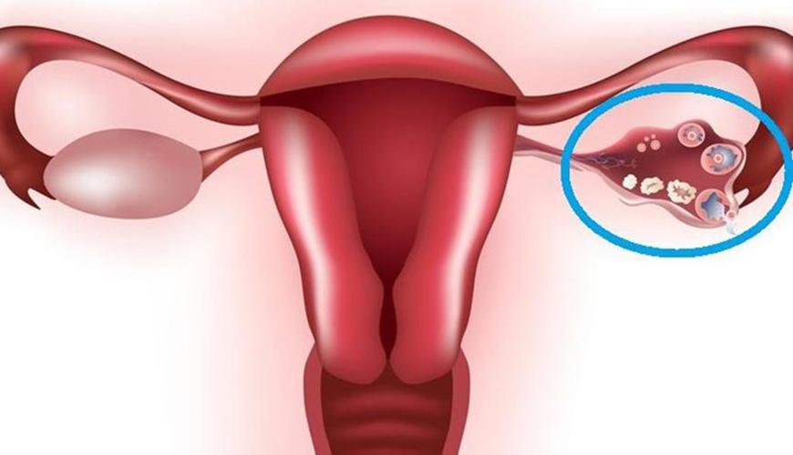 درمان کیست تخمدان بنر2