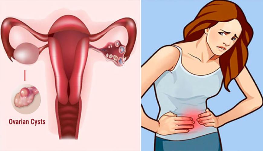درمان کیست تخمدان بنر1