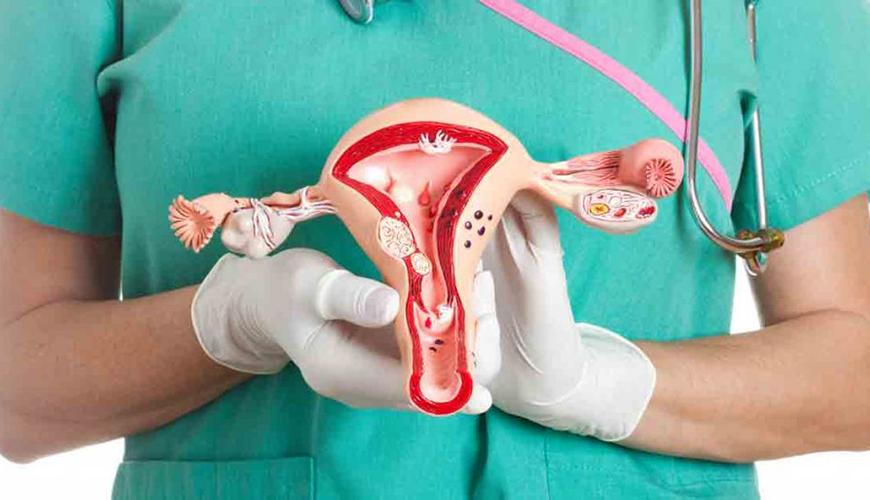 درمان کیست تخمدان بنر