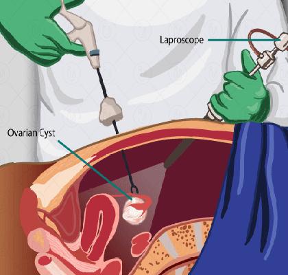 درمان کیست تخمدان اسلایدر1