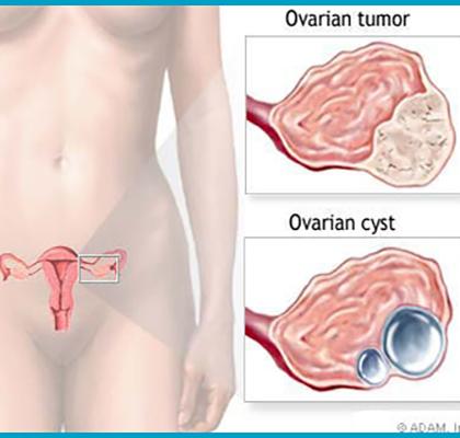 درمان کیست تخمدان اسلایدر2